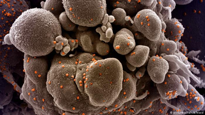 صورة وزارة الصحة : كشف 21 حالة جديدة من السلالة الإنجليزية من فيروس كورونا